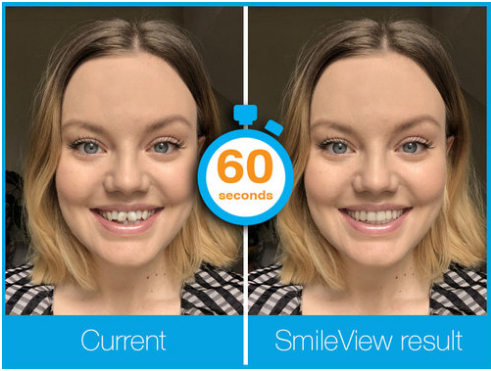 Current Smile and Projected Corrected Smile